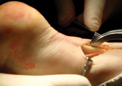 BANNER-IMAGES-Foot&Ankle_1280x400